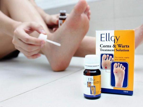 Thuốc Trị Mụn Cóc Ellgy - Malaysia