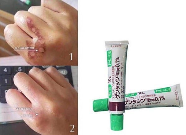 Kem Trị Sẹo Gentamicin Nhật Bản