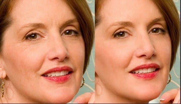 Khuôn Mặt Người Phụ Nữ Trước Và Sau Khi Sử Dụng Máy Massage Cơ Mặt